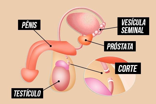 4-vasectomia-1
